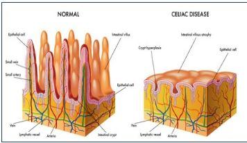 coeliac gut